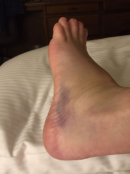 bruised foot